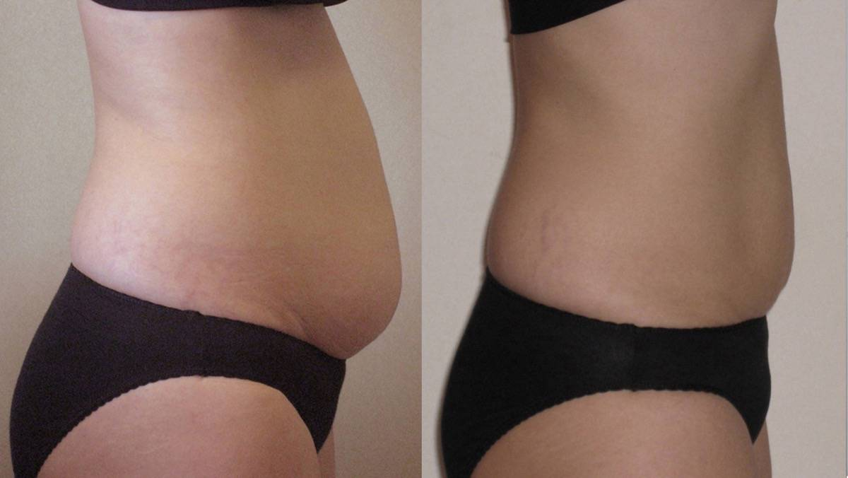 Strawberry Laser Lipo Inch Loss Before After Photo